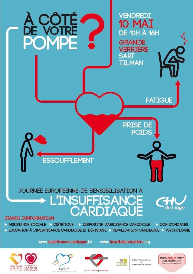 Site CHU - Insuffisance cardiaque : dépistage gratuit
